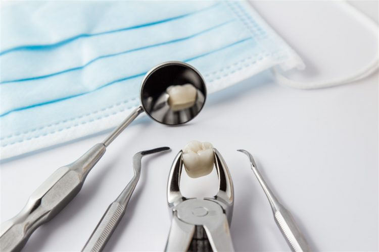 Tooth Extractions Fort McMurray