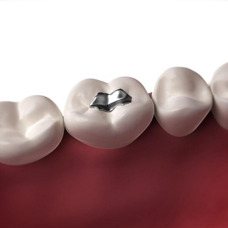 Fillings and Crowns