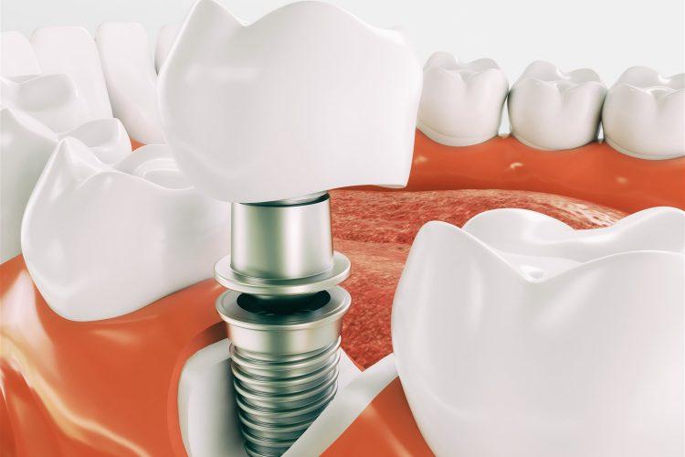 Dental Implants Fort McMurray